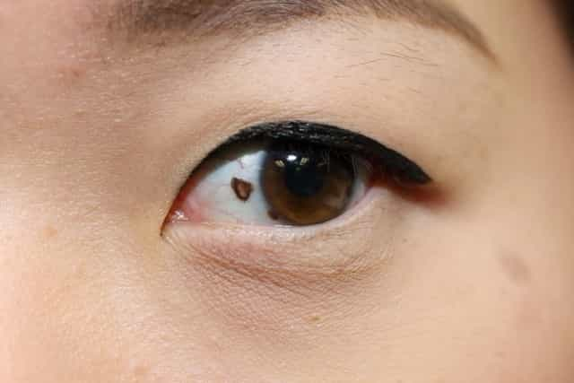 Mole Meanings on Body or Face for Male & Female, Lucky or
