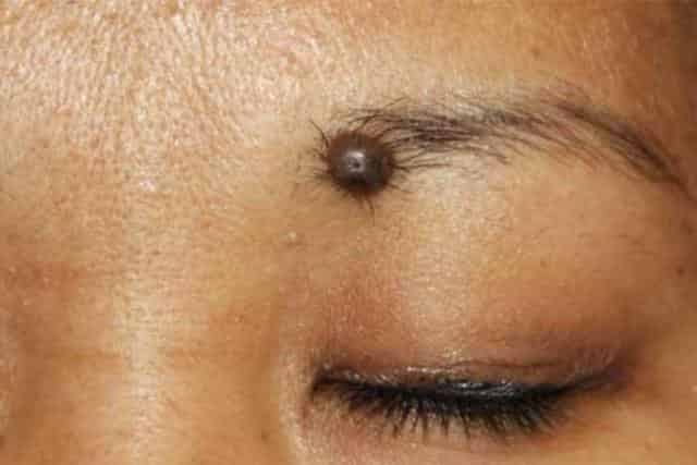 Mole Meanings on Body & Face: Male, Female, Lucky or Unlucky